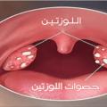 علاج التهاب اللوز للاطفال والكبار من تجاربي