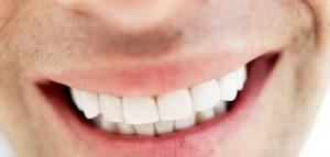 من جربت عملية زراعة الاسنان