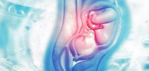 الاشياء التي تساعد على سرعة فتح الرحم