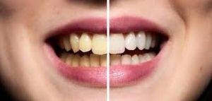 تبييض الاسنان لاتفوتكم مجربه وربي